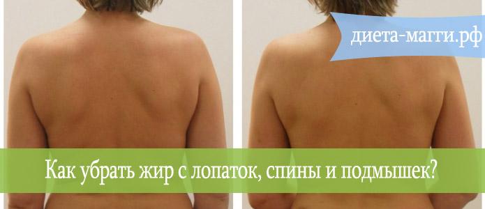 zhir-na-spine