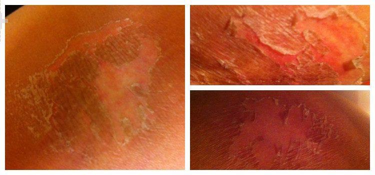 кожа после бадяги