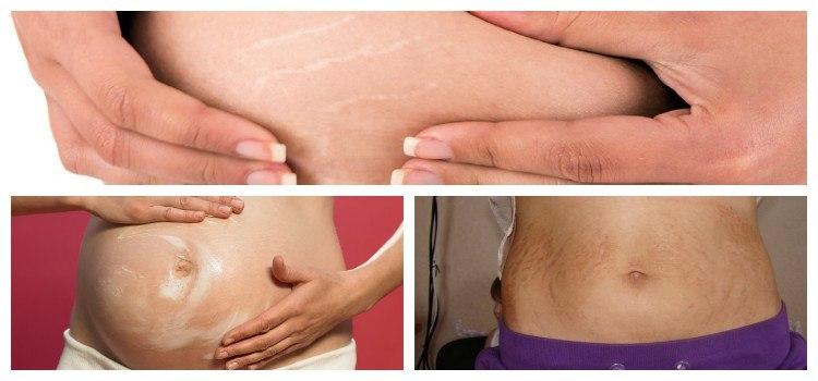 растяжки при беременности